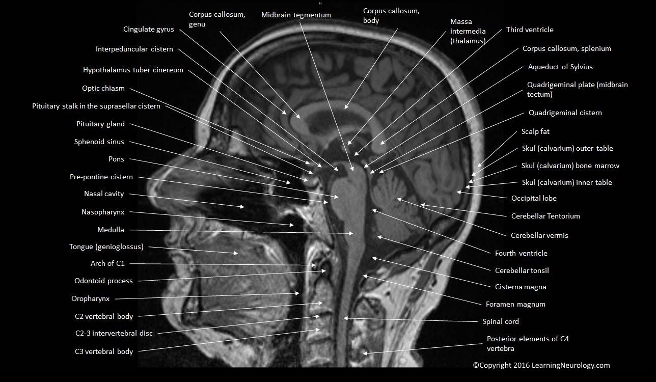 spine diagram neck approach to mri brain | learningneurology.com